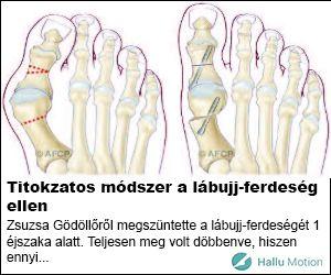 Kevesen tudják, hogy a köszvény azoknál alakul ki, akiknél a húgysav anyagcserében probléma áll be. Ez gyorsítja az ízületi gyulladás kialakulását a lábfej kis csontjaiban. Tipikus tünetei a köszvénynek a merev, duzzadt lábfej és a...