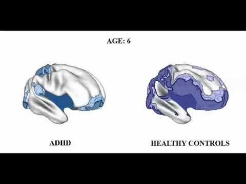 Rencontres TDAH adultes Hyperactifs - Réunions TDA avec ou sans ...
