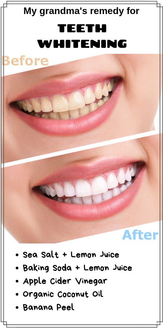 Miraculous Teeth Whitening Home Remedies With Natural Ingredients