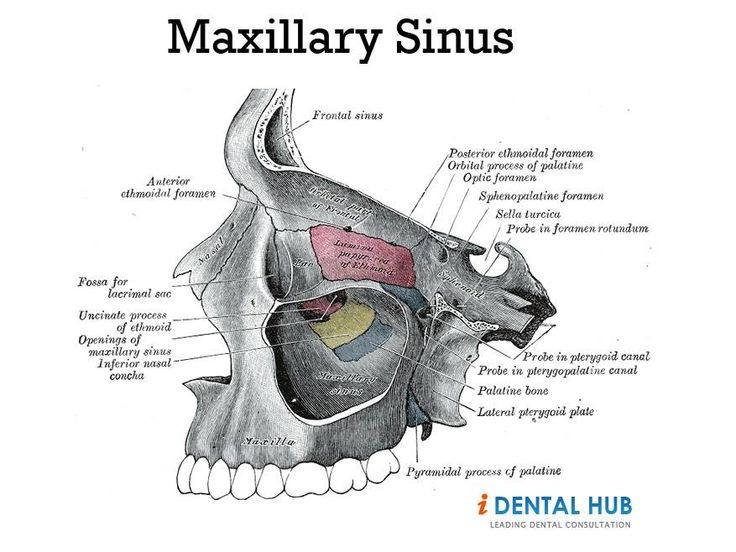 Pressure in right maxillary sinus
