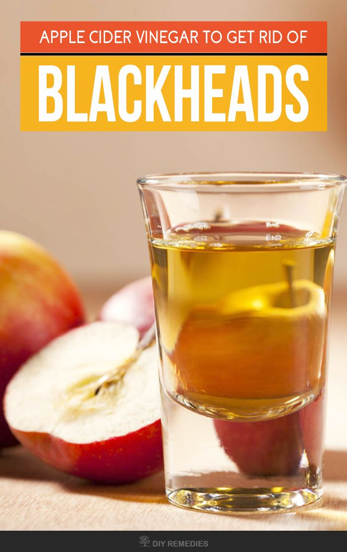 How to Get Rid of Dark Spots using Apple Cider Vinegar - When your skin got exposed to sun, then they will be an increase in the production of melanocyte cells which in turn results in the raise of melanin in the skin and thus makes the skin to turn darker. These dark patches of the skin are termed as dark spots, age spots, brown spots sun spots or hyper pigmentation.