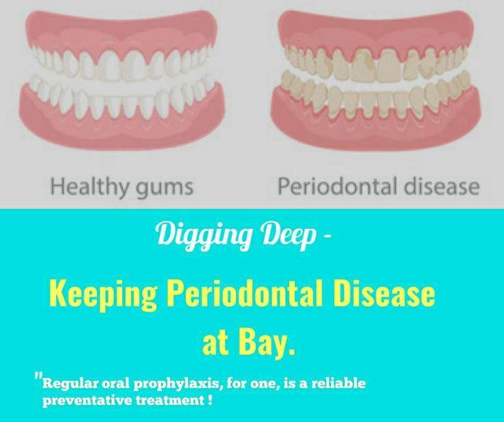 Digging deep keeping periodontal disease at bay dental