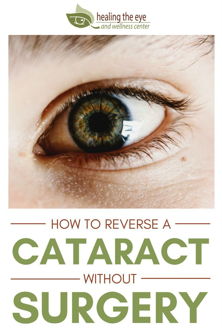 How To Reverse Cataract Without Surgery Cataract Surgery Cataract Surgery