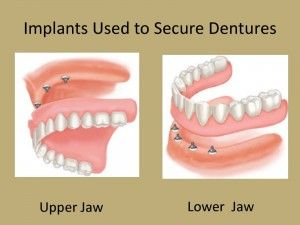 Dental implant overdenture Find more here: http://medicaltours.co.uk/blog/blog_mod/dental-implant-overdenture/