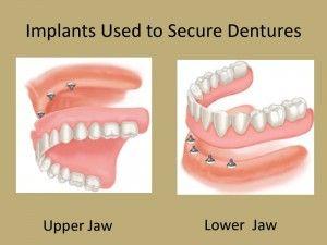 Dental implant overdenture Find more here: http://medicaltours.co.uk/blog/blog_mod/dental-implant-overdenture/