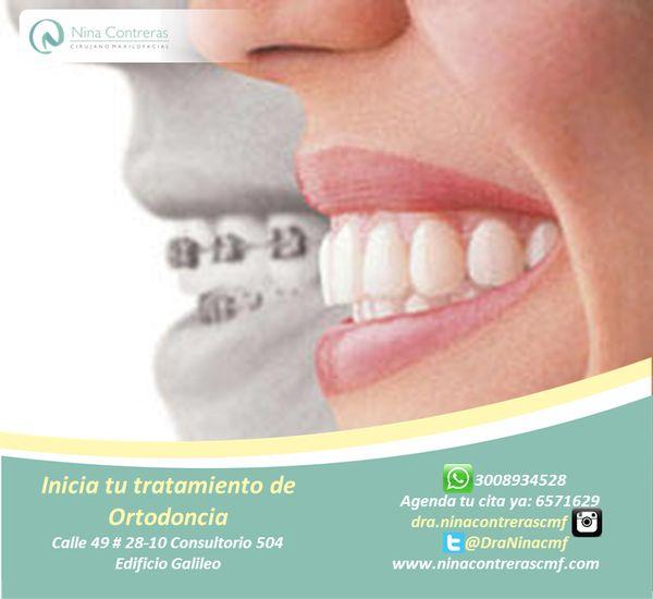 Nos encanta verte sonreír! La mejor técnica para conseguir unos dientes en perfecta posición, atrévete a generar cambios! Excelentes planes y descuentos. Agenda tu cita ya: 6571629 - WhatsApp: 3008934528 http://ninacontrerascmf.com/location/
