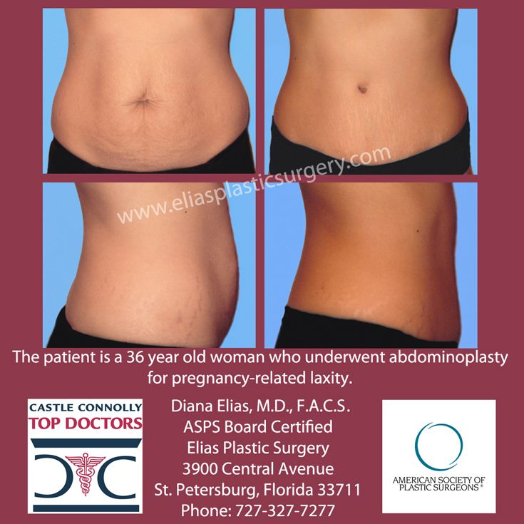 #Pregnancy leave your tummy a little loose? Tighten it up with #abdominopasty from #ASPS board certified #StPetersburg #plasticsurgen Diana L. Elias, M.D.