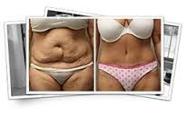 https://www.facebook.com/Non-Surgical-Tummy-Tuck-Procedures-1692197771056209/  Getting a flat tummy has become a lot more easier these days with the non surgical weight loss techniques readily available everywhere however you should take the necessary precautions so that you do not fall trap to any fake promises.  #Nonsurgicalweightloss