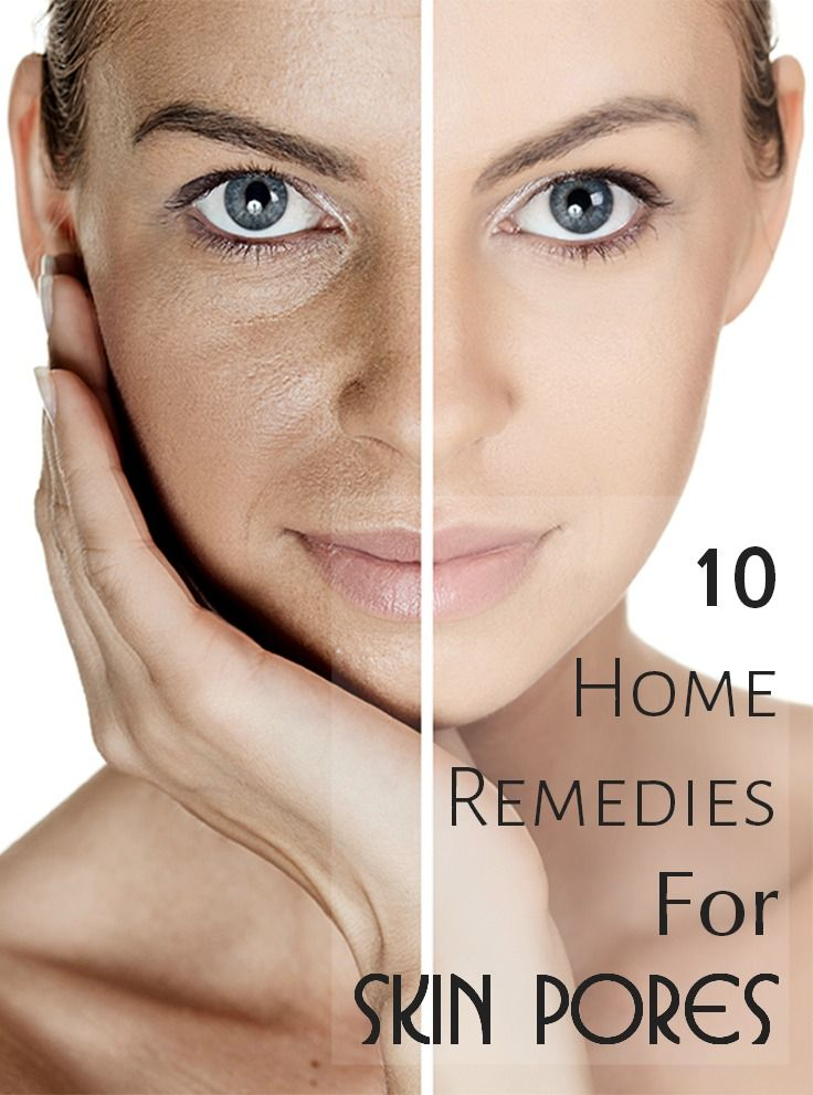 Nobody observes our pores just the way we see them in mirror. skin pores make the face look dull and aged. Here are 10 effective home ... #skin #skinpores #skincare