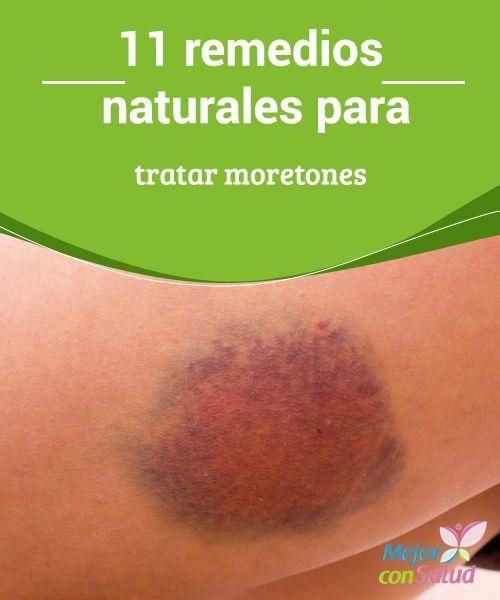 11 remedios naturales para tratar moretones  Los moretones o hematomas son unas lesiones de tonalidad violácea que se producen por la acumulación de sangre en los tejidos, debido a un golpe, contusión o caída.