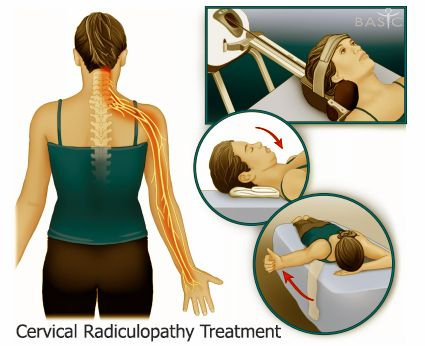 28 Best Images About Spine On Pinterest Physical Therapy