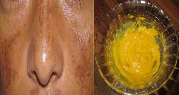 Simple remède pour supprimer les taches et l'hyperpigmentation de la peau dues aux rayons de soleil.
