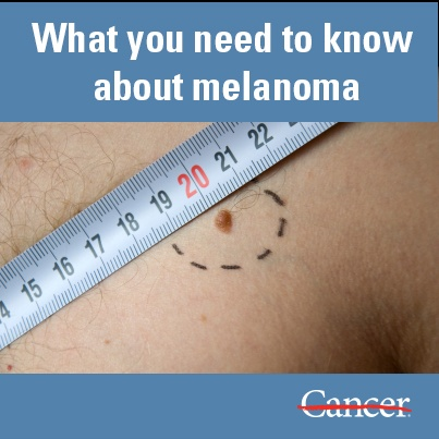 an analysis of the deadly skin cancer in the united states The population attributable risk fraction for the united states population was  calculated  in this analysis, we considered indoor tanning, sunbed, sunlamp,   melanoma11 12 although nmsc is generally not a lethal cancer,.