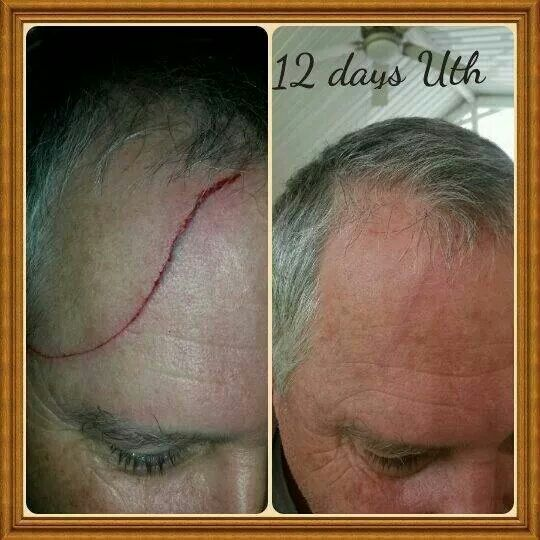 This guy had slashed his forehead from a piece of sheer metal!! He started to apply our Uth and voila!