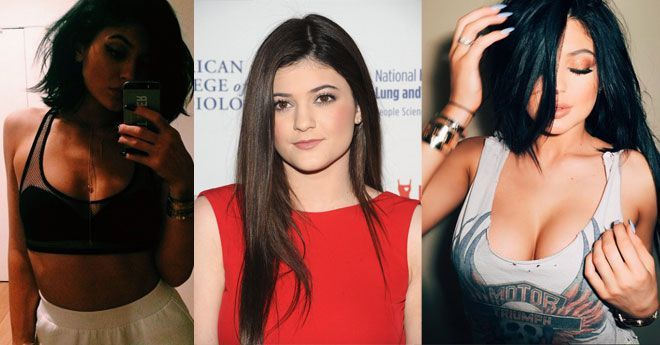 Kylie Jenner plastic surgery and boob job. before and after