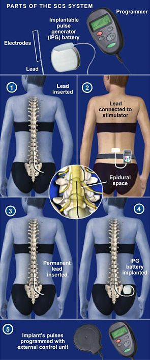 Spinal Cord Stimulator Implant - Spinal cord stimulation (also called SCS) uses electrical impulses to relieve chronic pain of the back, arms and legs. It is believed that electrical pulses prevent pain signals from being received by the brain. SCS candidates include people who suffer from neuropathic pain and for whom conservative treatments have failed. #spine #health