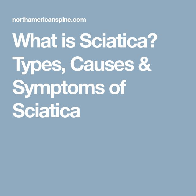 What is Sciatica? Types, Causes & Symptoms of Sciatica
