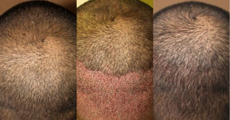 All About FUE Hair Transplant