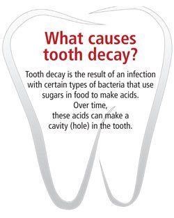 """Orthodontic Facts #2: """"Acids cause tooth decay."""" SmileWorks Orthodontics 8754 Research Blvd Suite A Austin, TX 78757 Tel: 512 582 2060 #orthodonticfacts"""