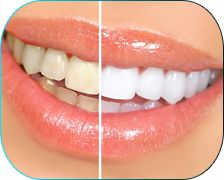 Dental Cleaning and Teeth Whitening Promotions and specials in toronto