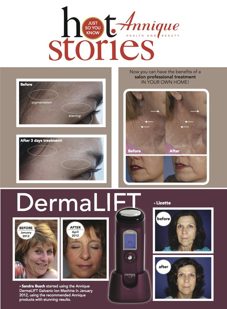 DermaLIFT before and after photos testify of the device's effectiveness.  Shop Online at http://rooibos-care.co.za