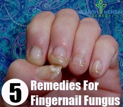 5 Remedies For Fingernail Fungus