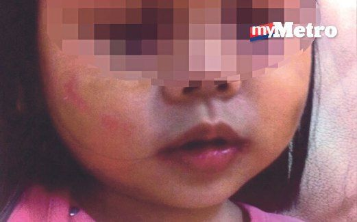 Budak perempuan 2 tahun didera pengasuh dikenali dari facebook