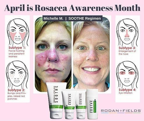 145 Best Images About A Solution For Sensitive Skin