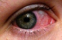 Ha! You won't believe how simple it is to clear this up WITHOUT a trip to the waiting room and a bill! Pinkeye Remedy! Wow, this will be good to know the next time somebody has pink eye..
