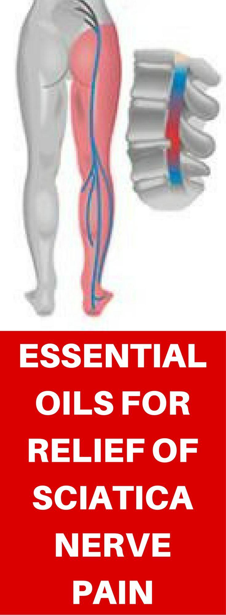 48 best sciatic pain images on pinterest sciatic pain back pain