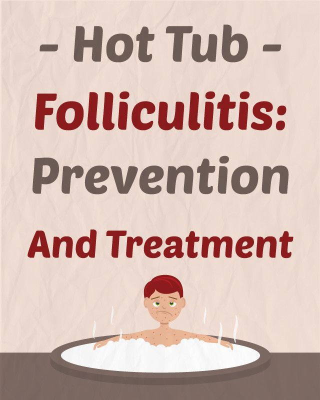 Hot Tub Folliculitis: Prevention and Treatment