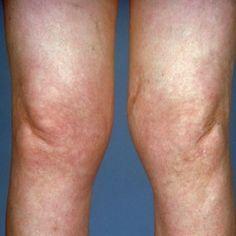 Common Symptoms Of Lyme Arthritis