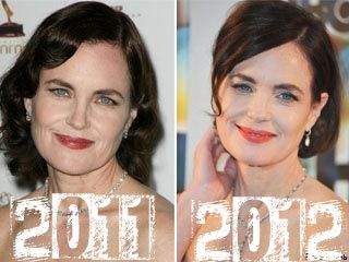 1000 Images About Plastic Surgery Before And After On