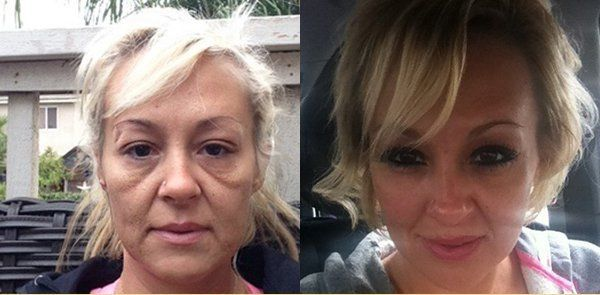 Toronto Grandma Outsmarts Doctors With Her $4 Trick to a Wrinkle Free Face: Surprising 14 Day Results Revealed!
