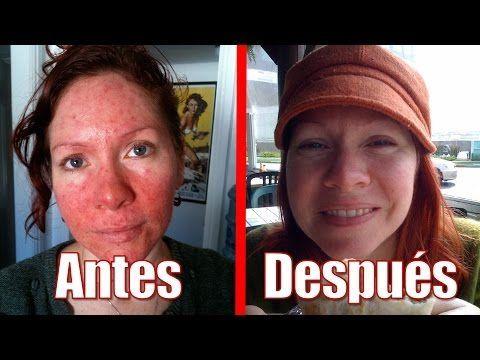1 Tienes Rosácea En La Cara Elimínala Naturalmente Con Este Remedio Casero 100 Efectivo Youtube Remedios Para La Rosácea Rosácea Remedios Caseros