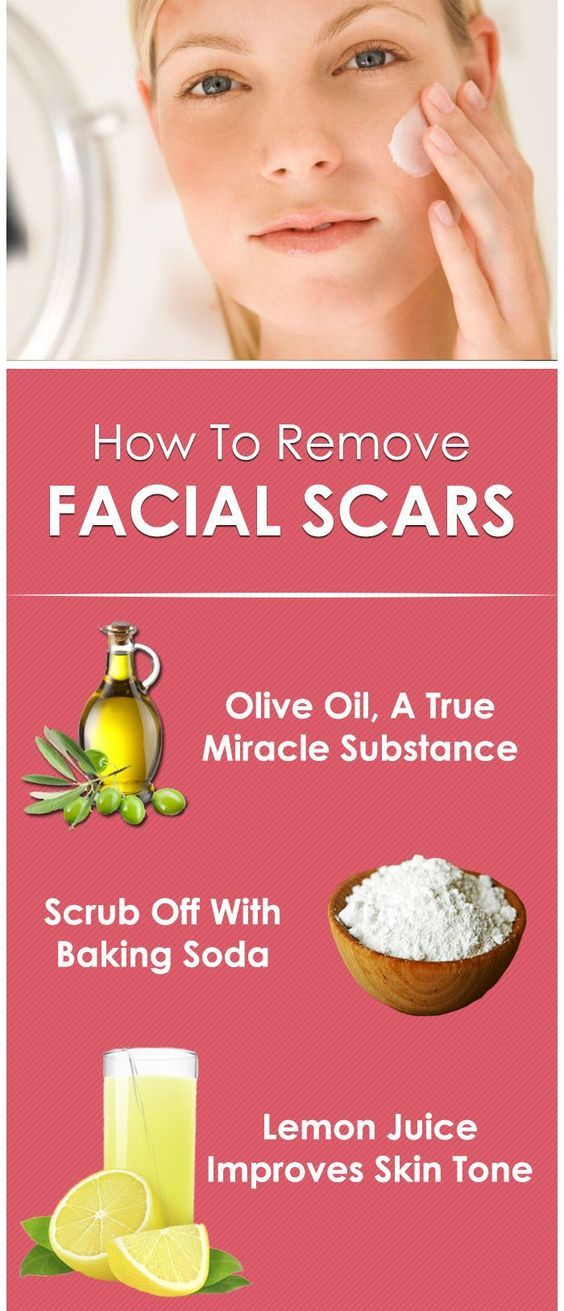 How to get rid of a pimple in minutes