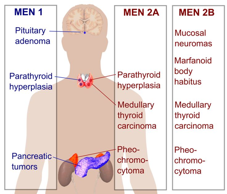 Multiple endocrine neoplasia - Wikipedia