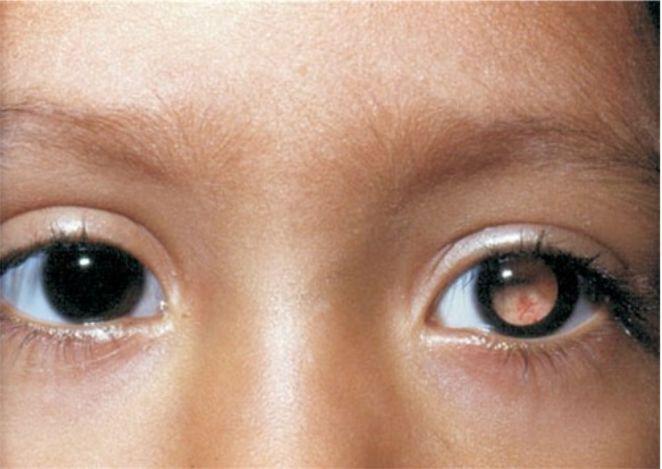 niño con leucocoria mancha blanca en pupila y estrabismo signos frecuentes de retinoblastoma
