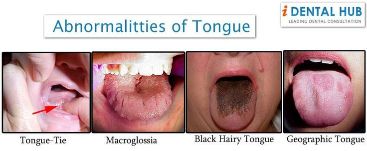 Tongue is an important part of mouth and it can suffer from many abnormalities like tongue tie, Macroglossia, Black Hairy tongue, Median Rhomboid Glossitis, Microglossia, Geographic tongue, Tongue Cancer. Treatment and Taking care of tongue is important as in case of these problems, one can have difficulty in swallowing the food and speech.