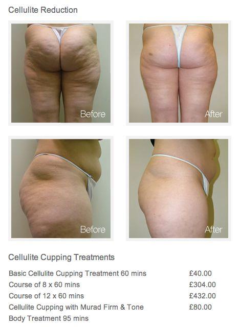 Best 25 Cellulite Treatment Ideas On Pinterest