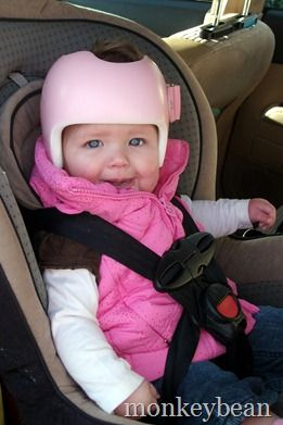 145 Best Torticollis Plagiocephaly Doc Band Images On