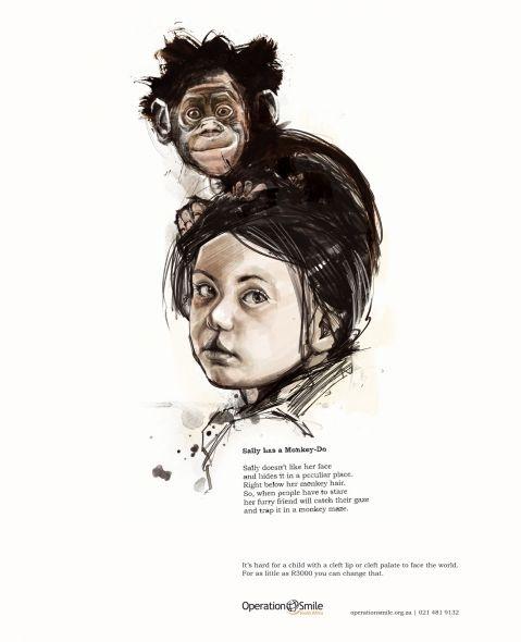 Operation Smile: Sally Monkey