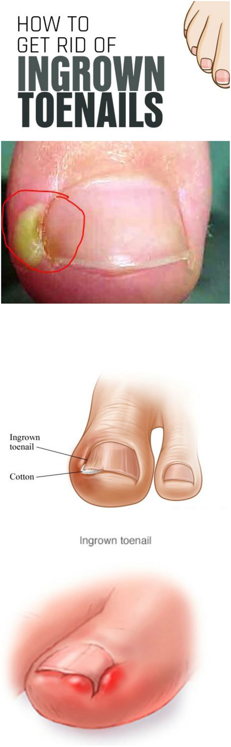 The ingrown toenail is a chronic disease in which, for various reasons, there is an ingrowth of one or both of the side edges of…#treatment #ingrown #toenails #healthy #tip