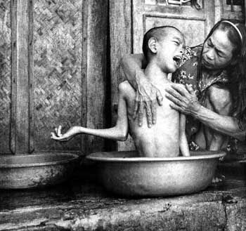 Cam Lo, Quang Tri Province. Phan Thi Hoi bathes her 14-year-old son, Bui Quang Ky. She was exposed to Agent Orange when she was in the North Vietnamese Army during the war. Detail of photo by James Nachtwey