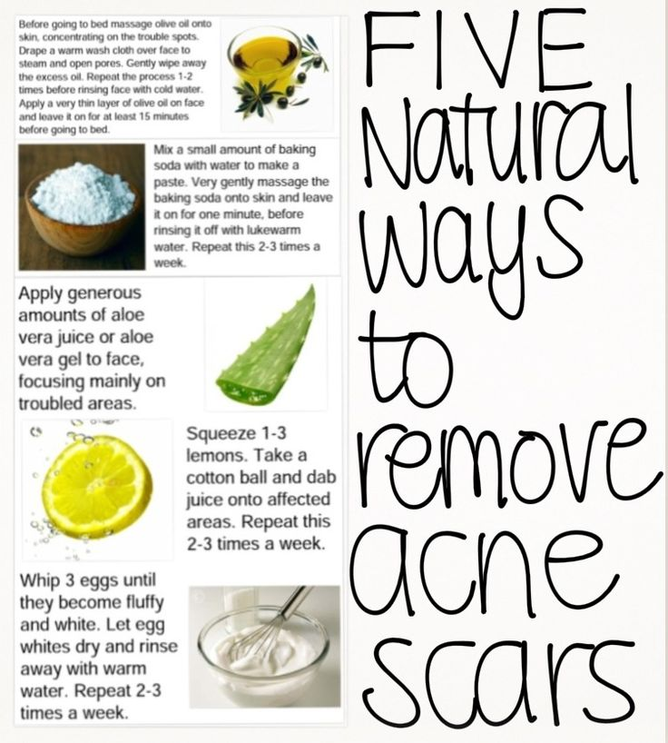5 Natural Ways to Remove Acne Scars