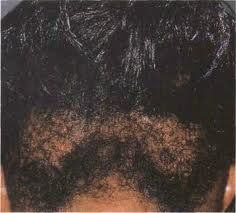 How To Stop Hair Breakage and Hair Damage With Black African American Hair Growth ~ HowToBlackHair.com