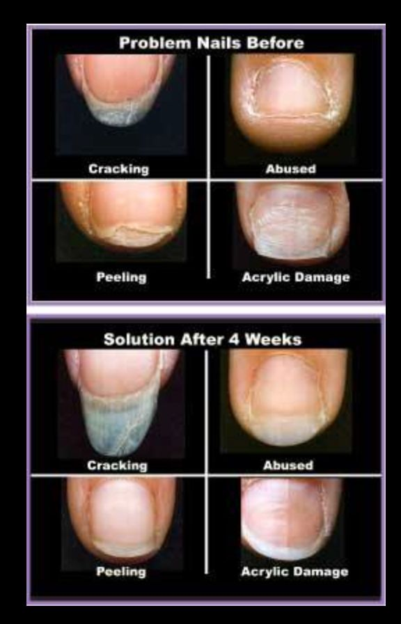Common nail problems and natural remedies By Dr Nima Shei MD  Help YourselfNatural Cures Not