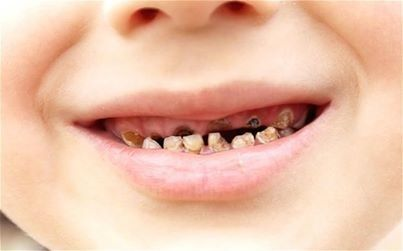 This is Baby Bottle Tooth Decay from baby sipping on a bottle at night. Patient Education Ideas.