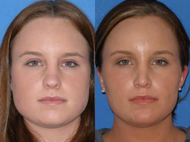 Botox Jaw Reduction Vs. Jaw Reduction Surgery (Jaw Shaving)