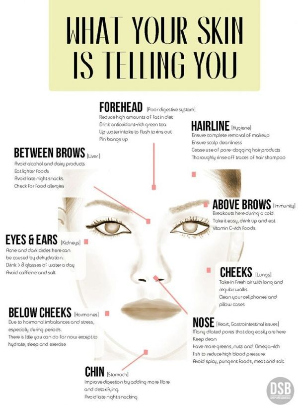 Acne Plagued by Spots and Pimples? Help is at Hand with Some Useful Acne Infographics ...